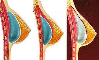 Implante de mama submuscular parcial