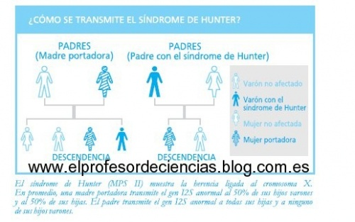 Sindrome De Hunter