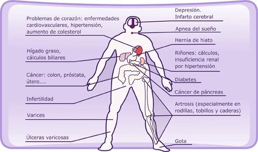 enfermedades de la obesidad infantil: