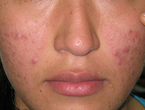 El acné y diane