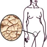 Sequedad vaginal - Resequedad vaginal - Sequedad