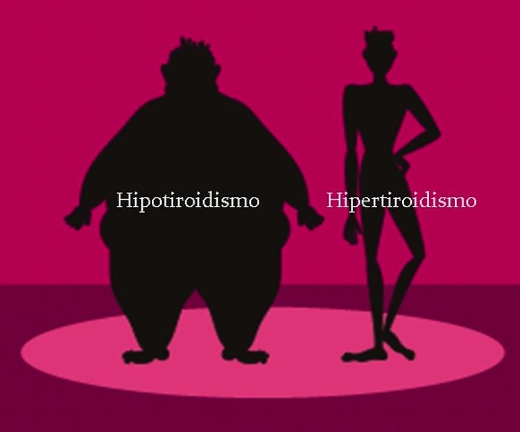 C mo puedo adelgazar si tengo hipotiroidismo - Como puedo adelgazar ...