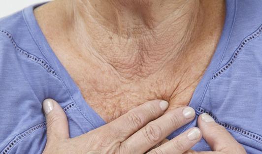 7 Trucos Y Secretos Para Prevenir Y Tratar Las Arrugas De La Zona Del Escote