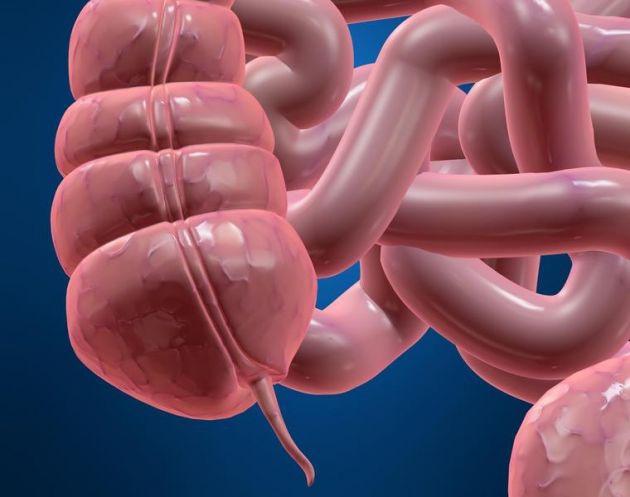 La patología más común del apéndice vermiforme