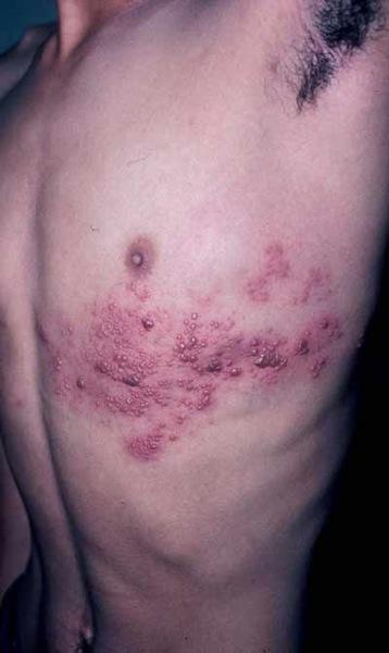 que es una reaparicion dolorosa del virus de la varicela, que puede