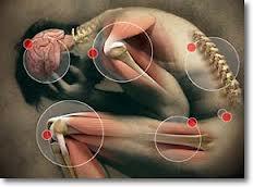 Sheynyy la osteocondrosis y la presión arterial las revocaciones