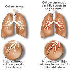 El dolor en los riñones y en lo bajo del vientre con el mioma
